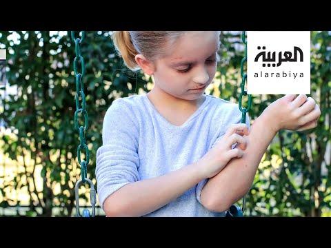 كيف نتعامل مع إكزيما الأطفال